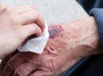 szybkie leczenie ran